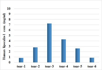 Human Lipocalin-1 concentration in tear samples