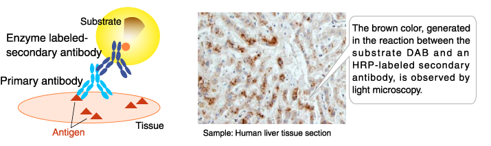 Application example of enzyme-labeled antibodies: Immunohistochemical staining